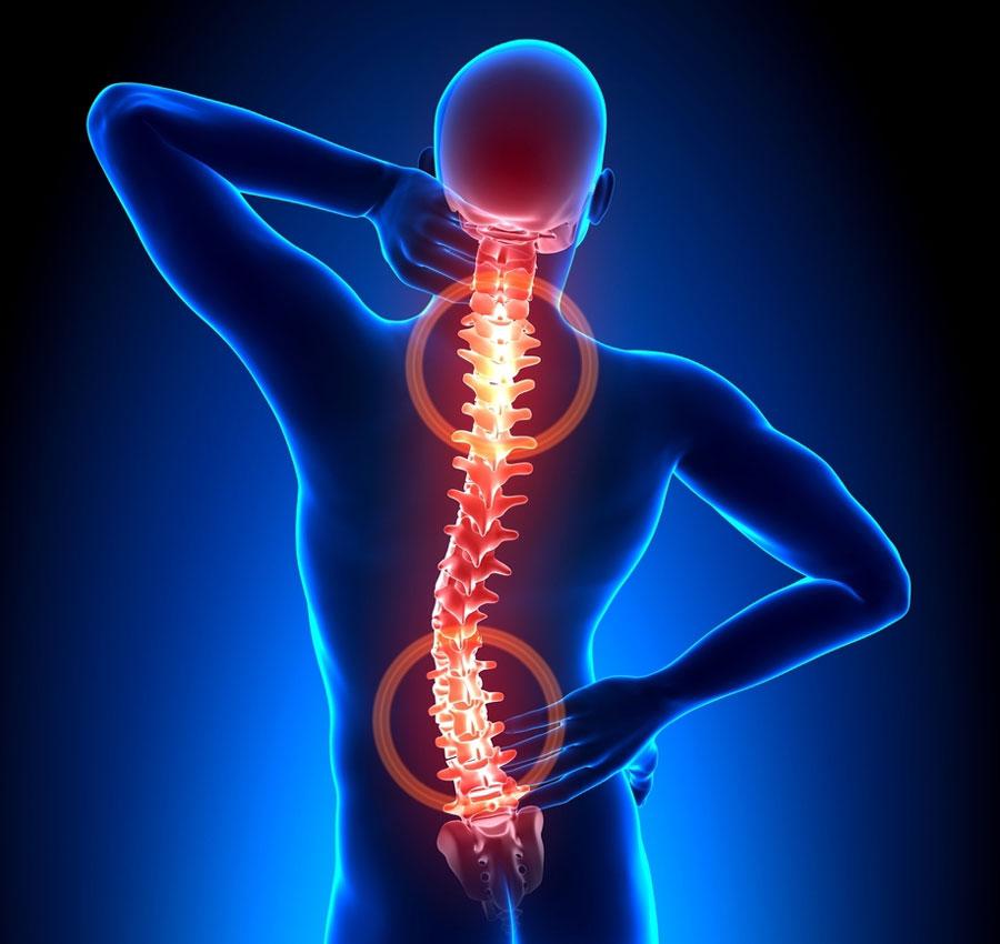 Бубновский о лечении шейного остеохондроза