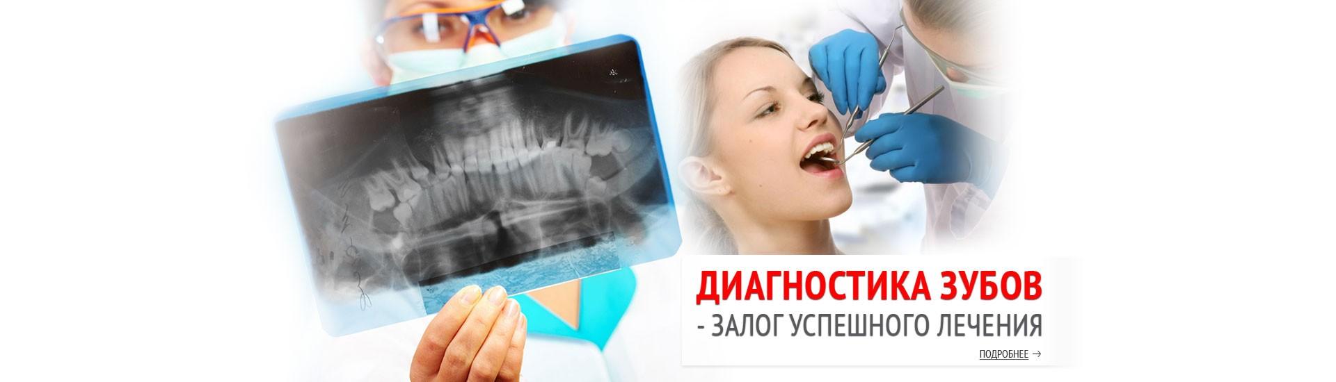 виниры протез зубов цена украина